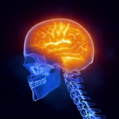 What is fibromyalgia? Is it all in your head?