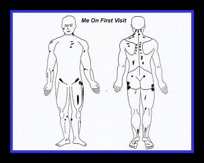 guaifenesin protocol body map