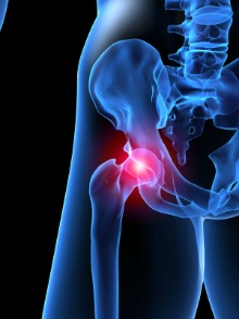 hip joint pain, 3d picture of hip joint, fibromyalgia hip pain